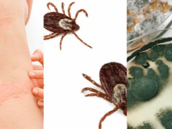 Histamine, Lyme, and Mold webinar